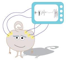 électroencéphalogramme