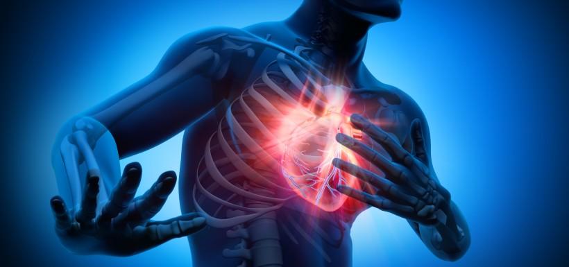 Visuel 3D d'un homme qui a des douleurs cardiaques